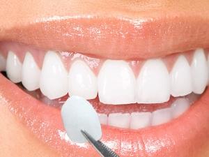 Veneers dental consult