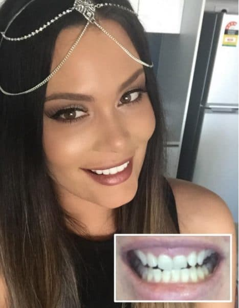 Veneers before and after